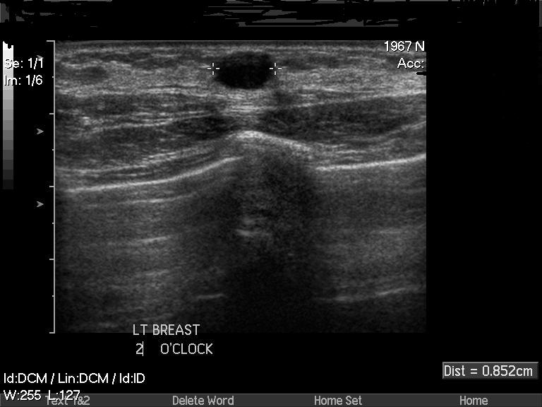 Understanding Breast Cysts Total Health