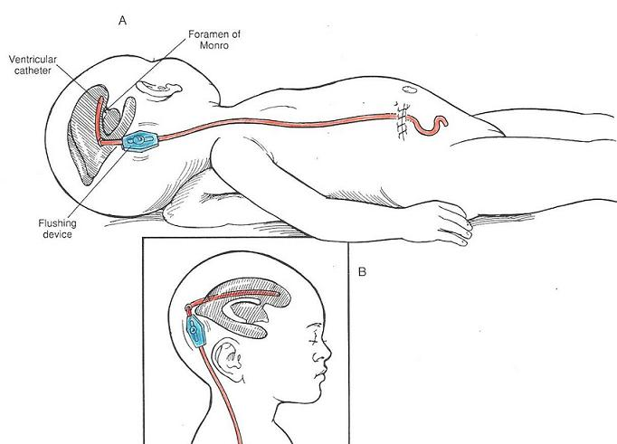 Treating Hydrocephalus Total Health