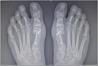 What causes bunions and what are the possible treatment ...