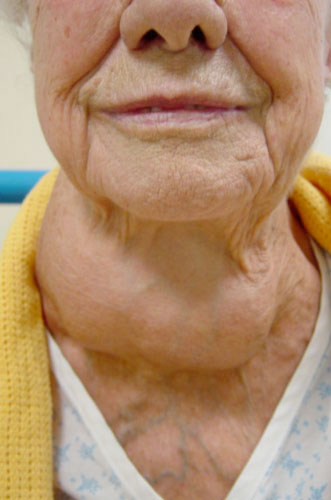 Causes Of Neck Lumps Total Health