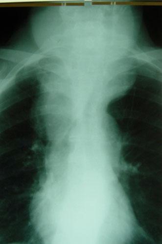 Neck lump FAQs | Total Health