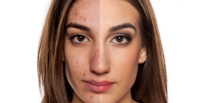 What are the benefits of microneedling? | Total Health