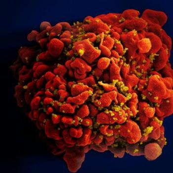 HIV-infected-H9-T-Cell.jpg